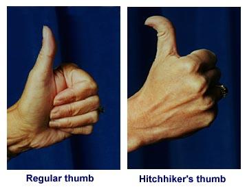 Hmm, seems I've got 'hitchhiker's thumb' | Pied Type