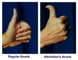 Hmm, seems I've got 'hitchhiker's thumb'