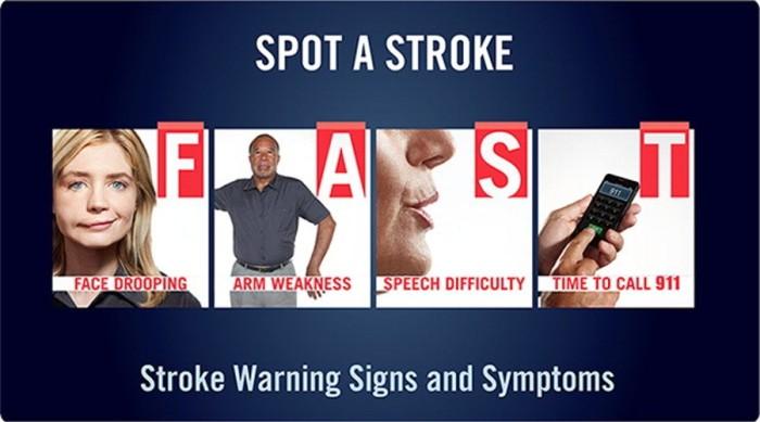 stroke-FAST